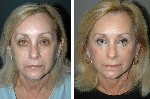 smas-face-lift-before-and-after